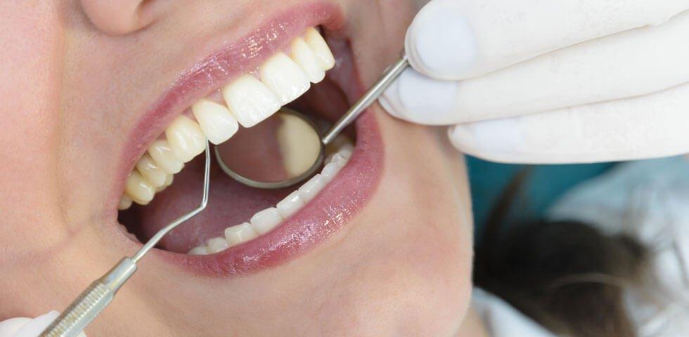 comprehensive-dental-exam