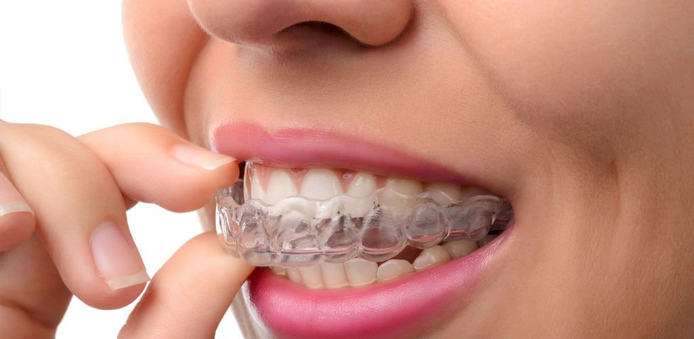 invisalign-ortho-close-up